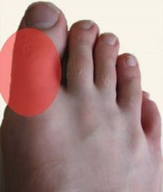 how to reduce of uric acid best foods for gout sufferers can apple juice reduce uric acid