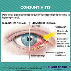 commotio retin-síntomas de diabetes