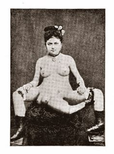 Blanche Dumas was born on the Caribbean island of Martinique in 1860, to a French father and a biracial mother. She had a third leg attached to her sacrum, and her two primary legs were said to be imperfectly developed. The third leg was without a mobile joint but had a bend in it where the knee would have been. Her pelvis was wider than normal and she had double genitalia as well as a duplicate bowel and bladder. To the right of her middle leg was the stump of another limb; it's unknown at…