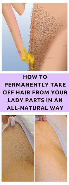 Though hair provides insulation to our body, they can also affect the perfect look of a person. Unwanted hair on the visible areas of the body like hands, feet, face and back are one of the main cosmetic problems faced by many women. Unwanted hair growth occurs due to imbalance of hormones in the body, …