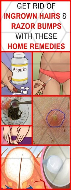 Get Rid Of Ingrown Hairs And Razor Bumps With These Home Remedies Hairs that curl around and grow back into the skin, without rising up are called ingrown hairs. They can cause irritation and may be quite problematic. Thus, let us see some tips to get ri Exfoliating Gloves, Exfoliating Soap, Ingrown Hair Bump, Ingrown Nail, Shaving Bumps, Ingrown Hair Remedies, Bump Hairstyles, Razor Bumps, Dresses