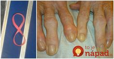 Pre tých, ktorí trpia stuhnutosťou rúk, bolesťami a neustále studenými rukami: Obtočte si okolo prstov obyčajnú gumičku, je to najjednoduchšia pomoc!