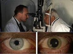 un-anciano-de-90-anos-casi-ciego