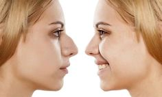 Rhinoplasty Guide – Part 1 – What is Rhinoplasty And Who Can Benefit?
