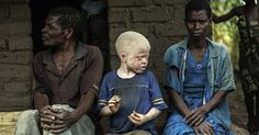 IMPORTANT: Malawi, stop ritual murders of people with albinism amnesty.org.uk Two-year-old Whitney was abducted from her bed while she was sleeping. Her skull, teeth and clothes were later discovered in a neighbouring village. Attacks against people with albinism like Whitney are on the rise....... 14 July 2016 www.amnesty.org.uk/actions/malawi-stop-ritual-murder-abduction-albinism-witchcraft#.V4fVhDJtVit.google_plusone_share