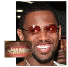 """Fabolous Teeth - Before And After  Before and after pictures of Fabolous' teeth are seen in the image below. Cardi B isn't the only person who got a bag and fixed her teeth. The """"Bodak Yellow"""" rapper is seen with Fabolous in the Instagram post below. In February 2017 Fab spent more than $40000 to get his teeth fixed. For years he rapped about how proud he was of his chipped tooth.  New York rappers are serious about their dental hygiene. Cardi B and Fab followed the lead of Nas. The Queens…"""