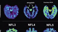 Here are the brain scans of NFL players that have been injured with concussions.