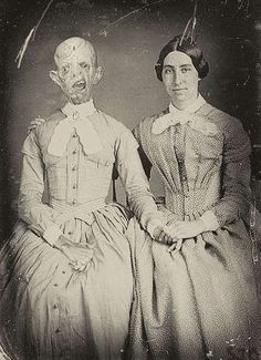 It was quite common – especially in the Victorian era – for family members to pose with deceased family members.