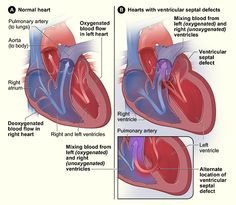 ventricular septal defect- another one of Sean's multiple issues with his heart .again repaired (partially) during his open heart surgery. Cardiac Nursing, Pediatric Nursing, Ventricular Septal Defect, Cardiothoracic Surgery, Heart Structure, Heart Murmur, Chd Awareness, Open Heart Surgery, Congenital Heart Defect