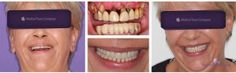 in One Day implants Crowns treatment Fix Teeth, Teeth In A Day, Perfect Smile, Medical Information, Dental Implants, Singles Day, Good News, Dental Crowns, Clinic