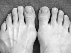 Wide Feet? Not to worry...there are strategies for coping, and fashionable WIDE shoes....