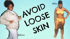 Avoid Loose Skin DURING and AFTER Weight Loss || Tips for your BEST & Ti...