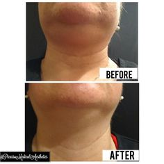 Botox Fillers, Dermal Fillers, Double Chin, Surgery, How To Remove, Instagram Posts