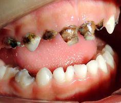 """Dental La Rosa: Sabes que es la """"Caries Rampante"""" ??La caries ramp..."""