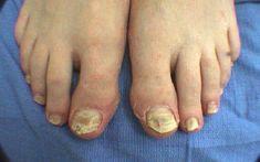 Μύκητες νυχιών, εξαλείψτε τους με την χρήση σόδας Αν δεν αντιμετωπιστεί εγκαίρως, η μόλυνση προχωρά βαθιά καταλαμβάνει όλο το νύχι οι άκρες θρυμματίζονται