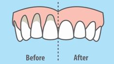10 Easy Ways to Heal Receding Gums Naturally - PowerOfPositivity Gum recession can occur due to genetics, poor dental hygiene, hormone fluctuations, or gum disease. Here are 10 easy ways to heal receding gums naturally. SEE DETAILS. Gum Health, Teeth Health, Healthy Teeth, Dental Health, Oral Health, Healthy Life, Dental Hygiene, Dental Care, Smile Dental