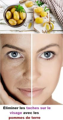Weird Trick Forces Your Body to Eliminate Acne - Free Presentation Reveals 1 Unusual Tip to Eliminate Your Acne Forever and Gain Beautiful Clear Skin In Days - Guaranteed! Facial Care, Belleza Natural, Perfect Skin, Dead Skin, Makeup Revolution, Smooth Skin, Healthy Skin, Skin Care Tips, Health And Beauty