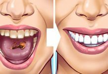 Tartar stains on your teeth can lead to several problematic issues resulting in weak teeth and even teeth loss in early age. Here are 10 helpful and proven natural remedies to get those ugly tartar stains removed from your teeth. Detox Drink Before Bed, Drinks Before Bed, Baking Soda Benefits, Remover Manchas, Fat Burning Detox Drinks, Natural Teeth Whitening, Teeth Care, Aloe Vera