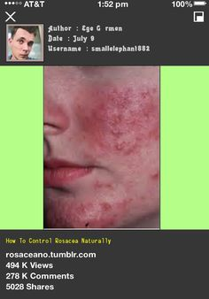 How To Control Rosacea Naturally 045749 - Rosacea Free Forever.