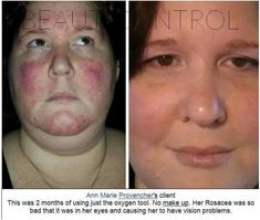 Ozone Tool results on Rosacea