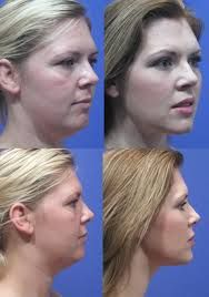 chin injection - Google Search