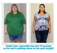 Yvette lost 75 pounds with Medithin Weight Loss Clinics