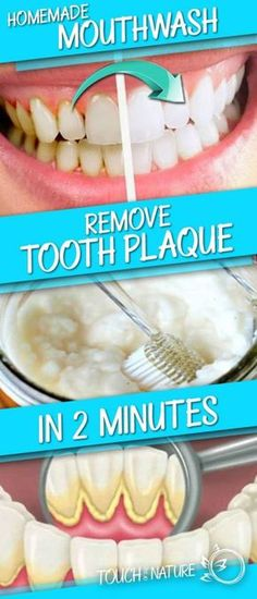 A Mouthwash for Removing Plaque from the Teeth in Just 2 Minutes - HealthyOne