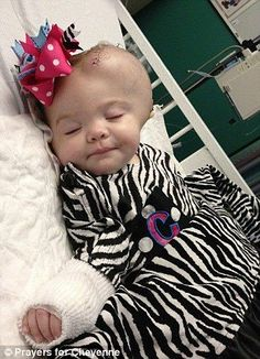 Cheyenne, child abuse survivor. Omg how cute is she...what a monster whoever did that.