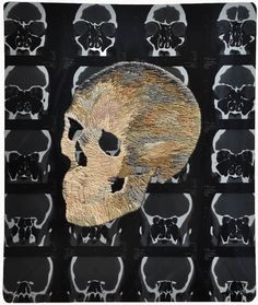 Philadelphia-based artist, Matthew Cox, creates beautiful embroidery on x-rays and MRI images.