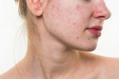Zatočte s akné jednou provždy s těmito tipy