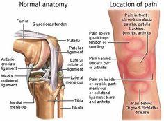 Patella Femoral Syndrome Symptoms, Treatments,