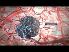 TheraSphere Animation: Liver Cancer Therapy, Radioembolization (U.S. Version)