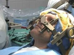 Patient Guide to Deep Brain Stimulation (DBS) Surgery, Mayfield Clinic