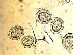 Eggs of Taenia spp.