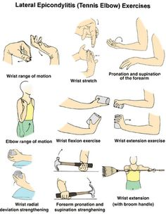 Tennis Elbow Exercises. Pinned by SOS Inc. Resources http://pinterest.com/sostherapy. - This is good to know for success and injury preventation - Check out this here http://belfit.com