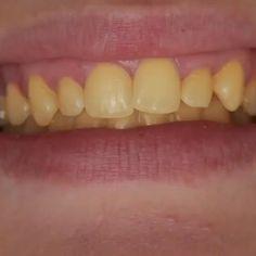 Fascinated Tooth Implant Before And After Teeth Teeth Whitening Remedies, Natural Teeth Whitening, Caleb Y Sophia, Teeth Stain Remover, Dental Videos, Teeth Implants, Health Routine, Stained Teeth, Dental Health