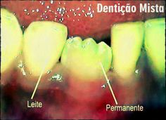 Dentição Mista | Odonto-TV