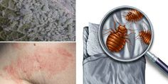 If you make your bed right away with the sunrise, millions of dust mites that live on your bed will be trapped. They feed of your dead skin cells and sweat and can contribute to asthma and allergy issues. An unmade and open bed will expose the creatures to light and fresh air and will …