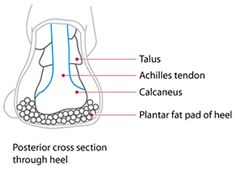 Heel Pain Advice | Maybe I have Fat Pad Syndrome