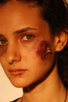 Cuts & Bruises - Fatima Anti-violence Organization - The project was a Graphic design campaign done by Nouran Farrag about domestic violence in women. My role in the project was to show with the help of makeup some examples of how women are brutally harassed by their husbands and boyfriends especially in Egypt. Design Campaign, Cuts And Bruises, Domestic Violence, Social Issues, Civil Rights, Human Rights, The Help, Female, Boyfriends