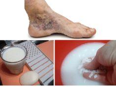 Zázračný recept na křečové žíly a trombózu: Potřebujete pouze 2 věci