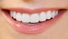 Smile Enhancement- Reviving the Perfect #Smile: In dire need of enhancing your smile? Check out the leading smile enhancement techniques prevalent in the modern world.