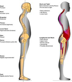 Posture! Why is it sooo important?