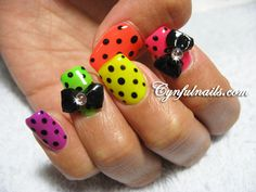 Neon Dots not crazy about the bows. This would be amazing for toes