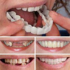 MAGIC Teeth Brace - Bigsuprise Perfect Teeth, Perfect Smile, Smile Teeth, Teeth Care, Smile Smile, Smile Care, Smile Dental, Misaligned Teeth, Veneers Teeth
