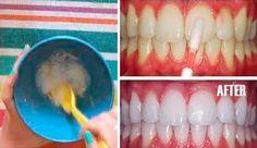 Estoy enojada porque mi dentista me oculto este método casero para blanquear los dientes