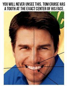 Sabias que Tom Cruise tiene una asimetría importante con desplazamiento de la linea media hacia la izquierda, por que le falta un canino...