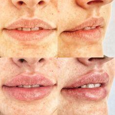 Natürliche Lippenvergrößerung by Dr. Huemer Lip Fillers, Lips, Lip Shapes, Fuller Lips, Liposuction, Thin Lips, Face, Upper Lip, Collagen