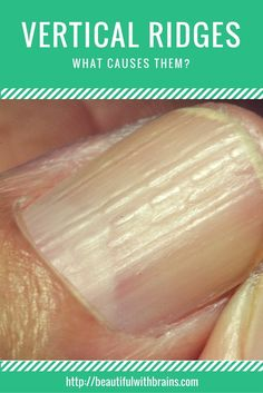 Vertical ridges that extend from the cuticle to the tip of the nail are very common. But are they something you should worry about? What causes them, and can you treat them? Read this to find out.