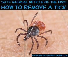 SHTF Medical Article of the Day: How to Remove a Tick